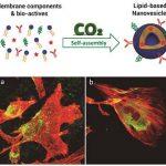 Lipid-based Nanovesicles for Nanomedicine